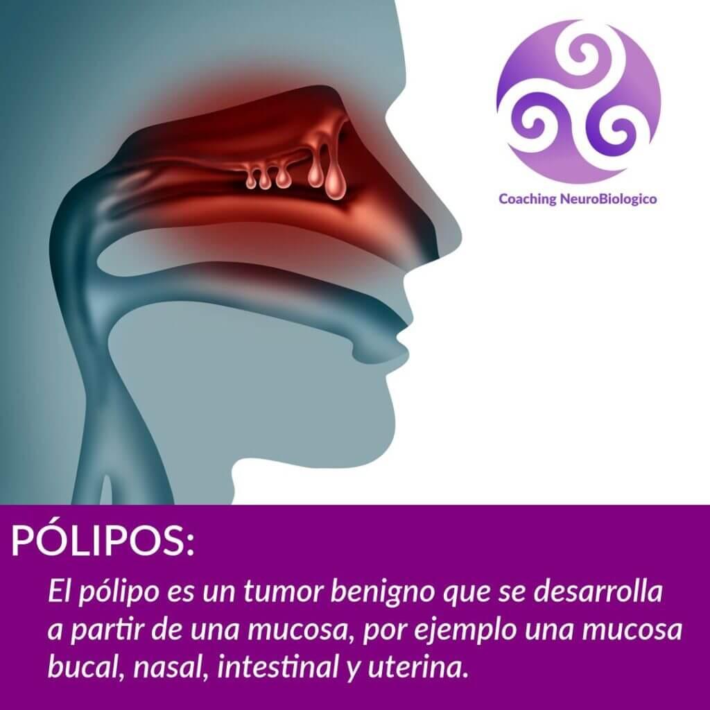 Polipos